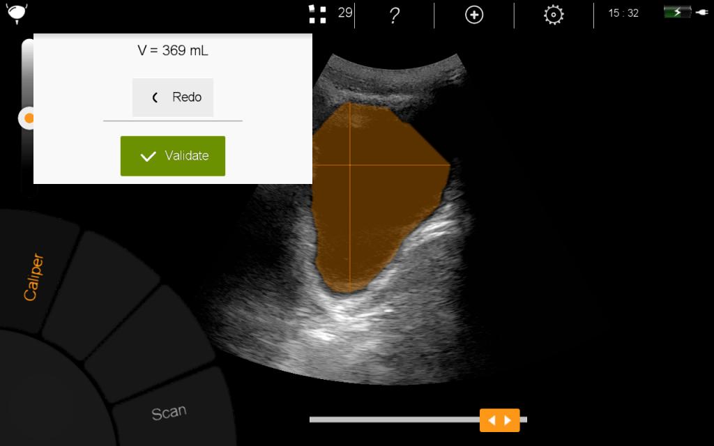 mesure du volume de la vessie avec U-Lite échographe ultraportable