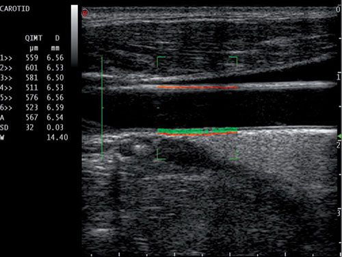 échographie de l'artère fémorale