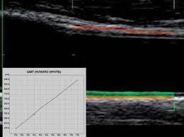 6-echographie.de.l.artere.femorale.detection.des.risques.cardiovasculaires.