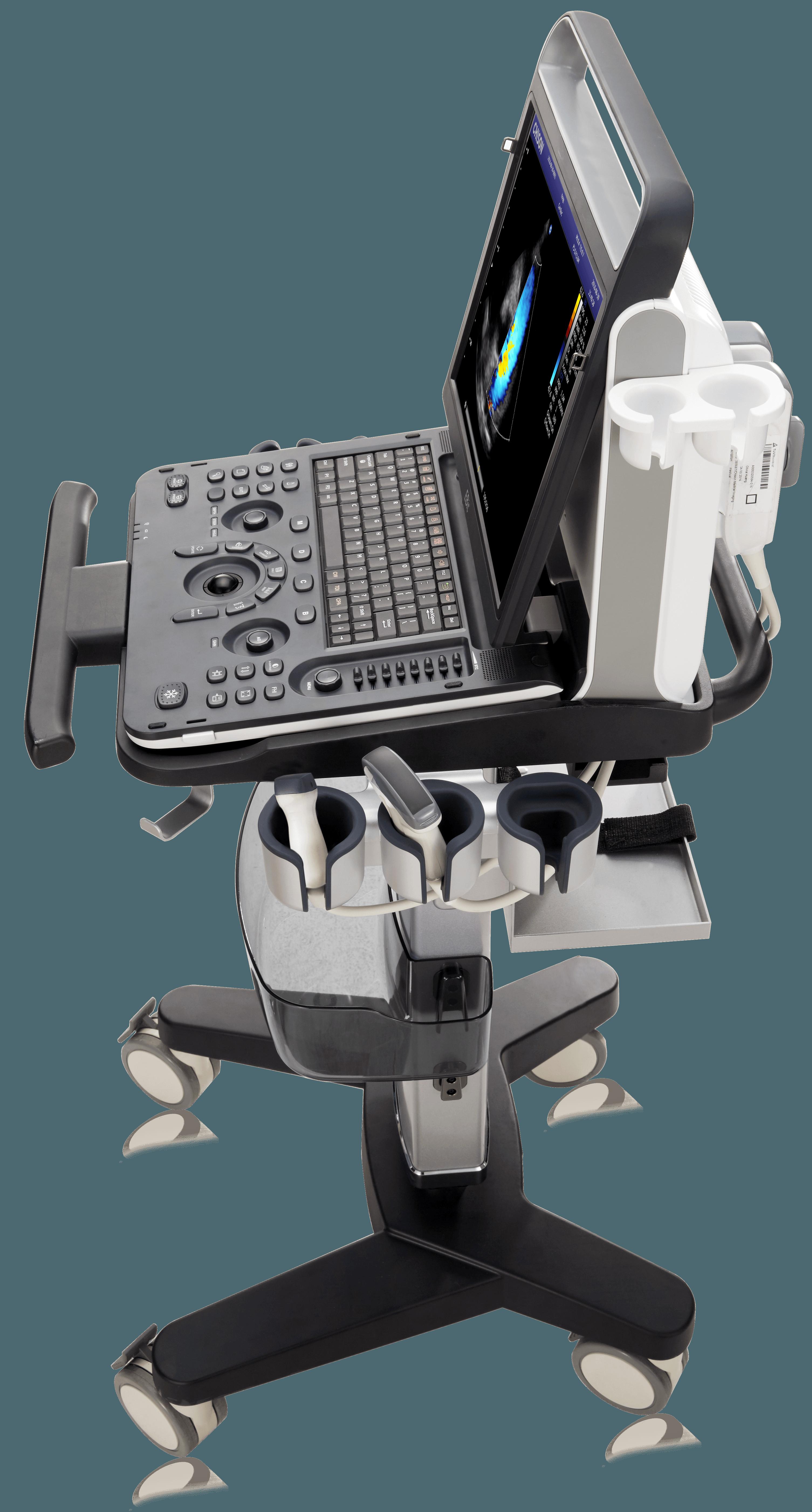 echographe portable chison ebit 60