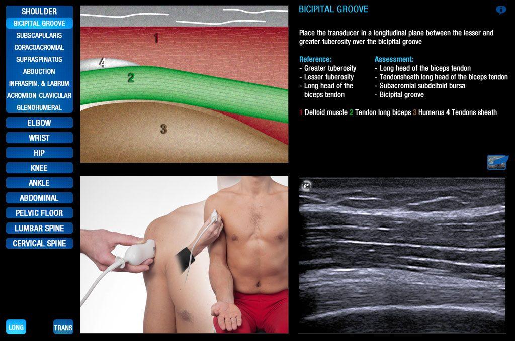 guide d'échographie musculo-squelettique