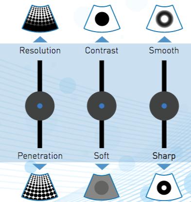 réglage des images d'échographies