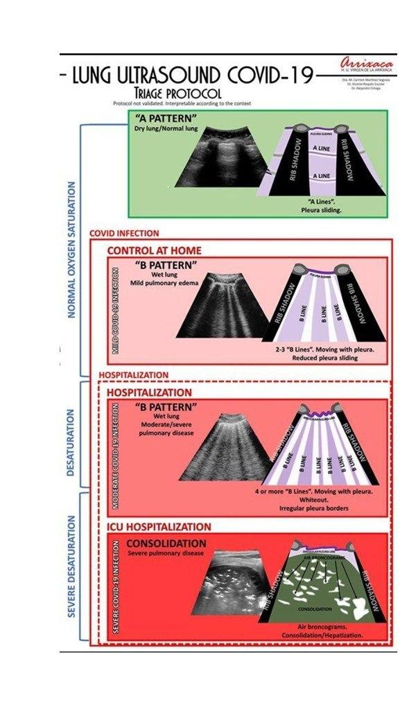 échographie pulmonaire COVID-19 triage