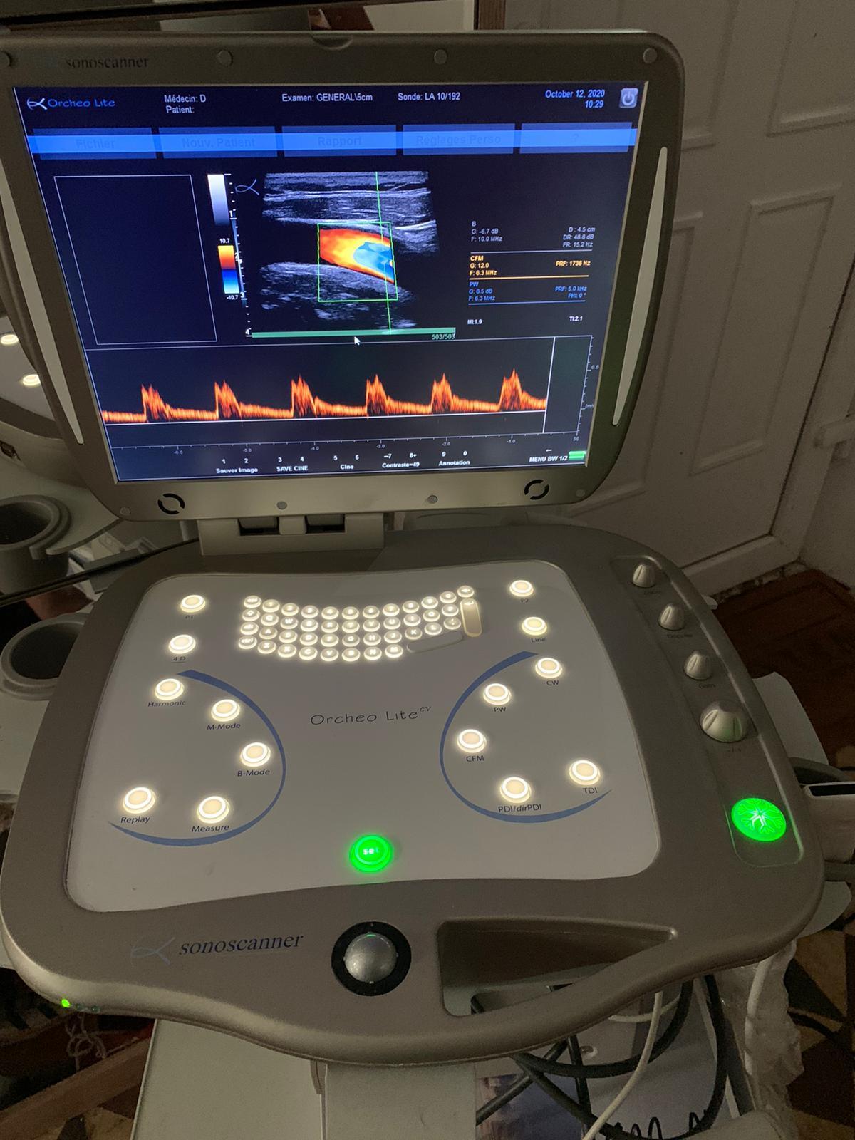 échographe d'occasion cardiovasculaire OrcheoLite