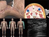 guide d'échographie en anesthésiologie