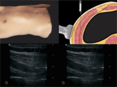 Guide d'échographie en anesthésiologie et traitementd de la douleur